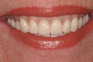 smiling with custom upper dentures