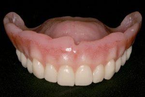 custom upper dentures