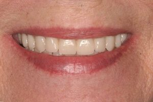 fixed dental implant teeth
