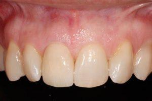 smile after dental implant crown procedure